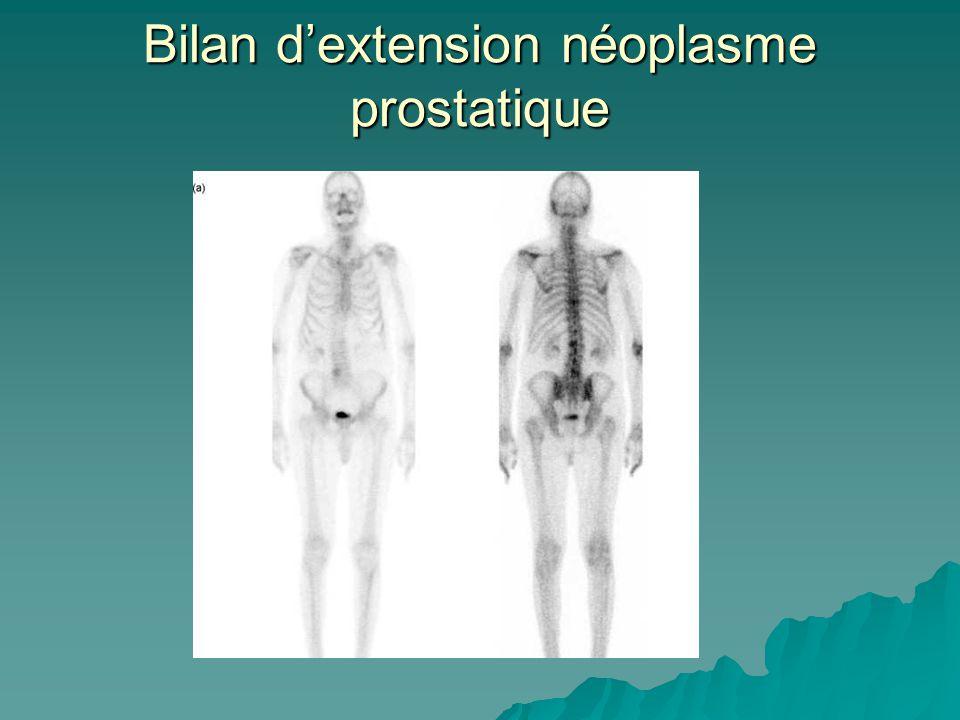 Bilan d'extension néoplasme prostatique