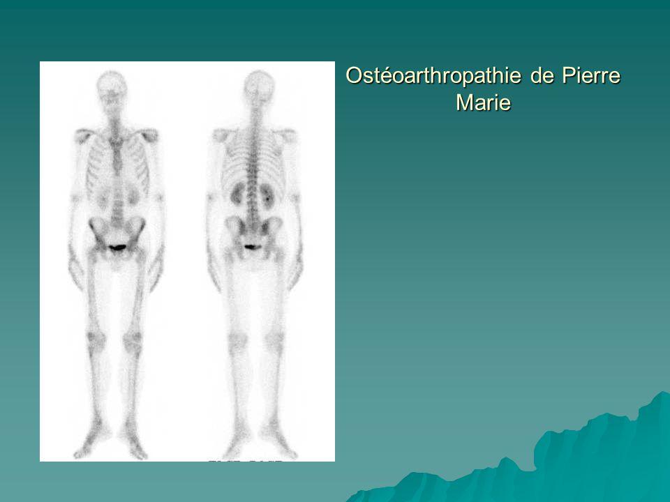 Ostéoarthropathie de Pierre Marie
