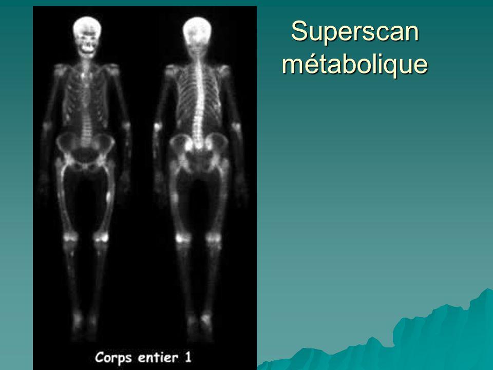 Superscan métabolique