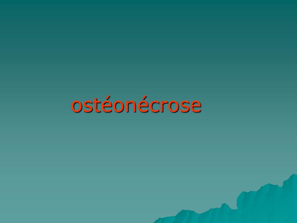 ostéonécrose