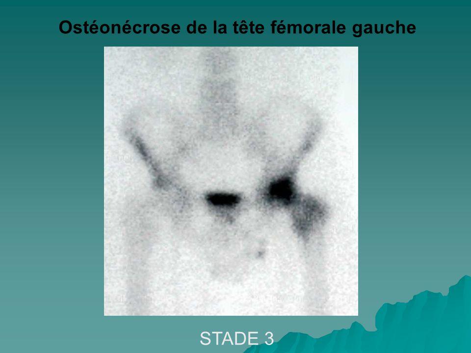 Ostéonécrose de la tête fémorale gauche