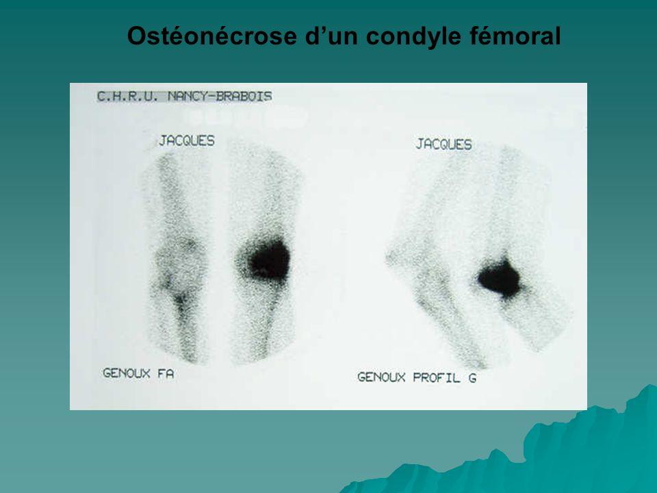 Ostéonécrose d'un condyle fémoral