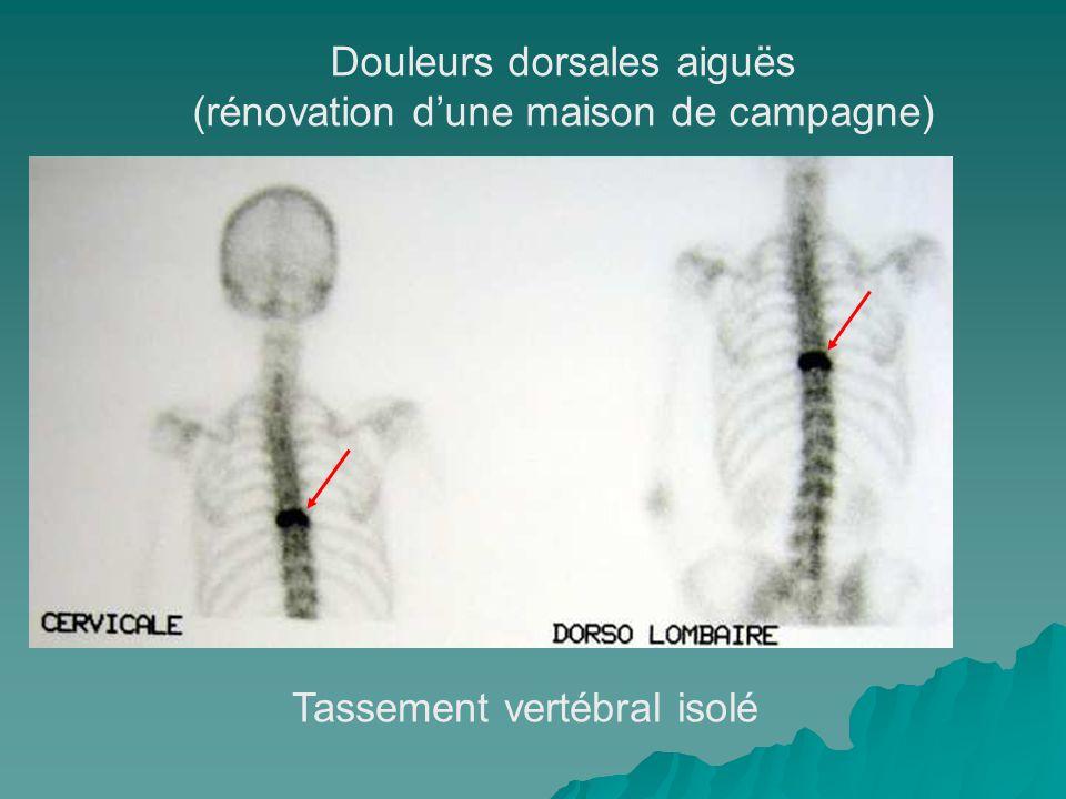 Douleurs dorsales aiguës (rénovation d'une maison de campagne)