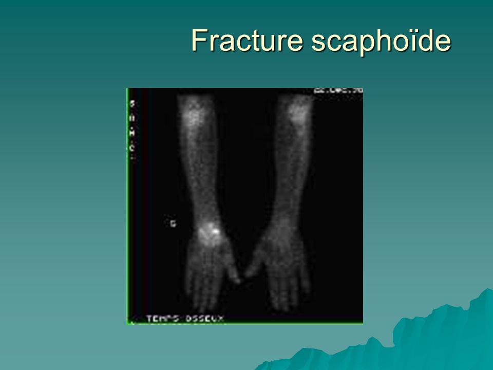 Fracture scaphoïde