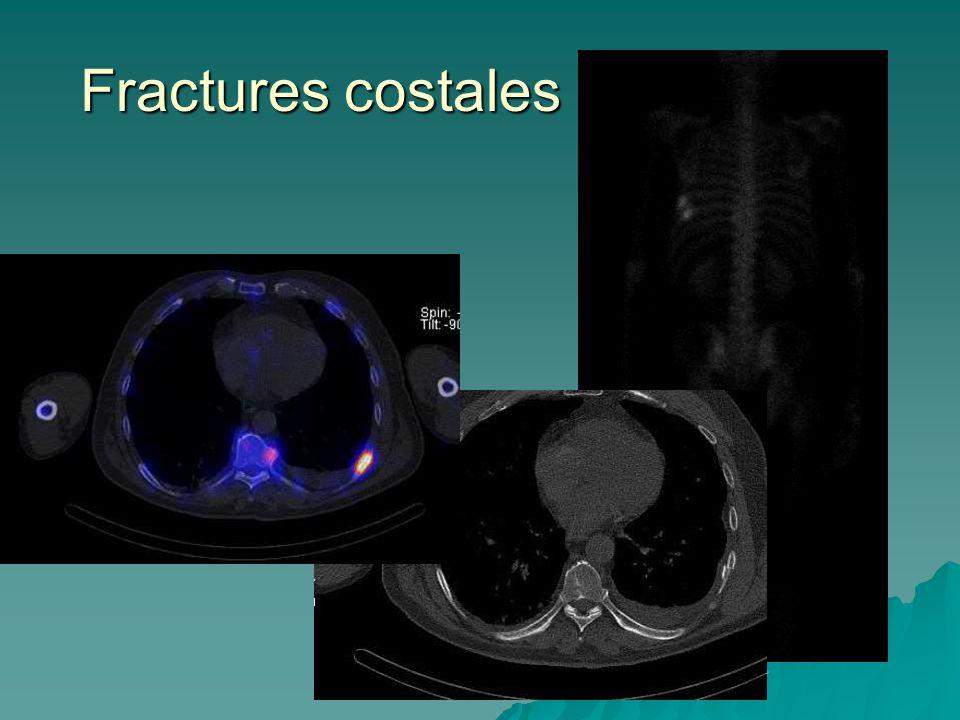 Fractures costales