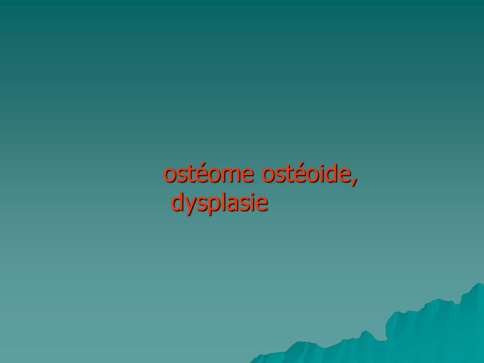 ostéome ostéoide, dysplasie