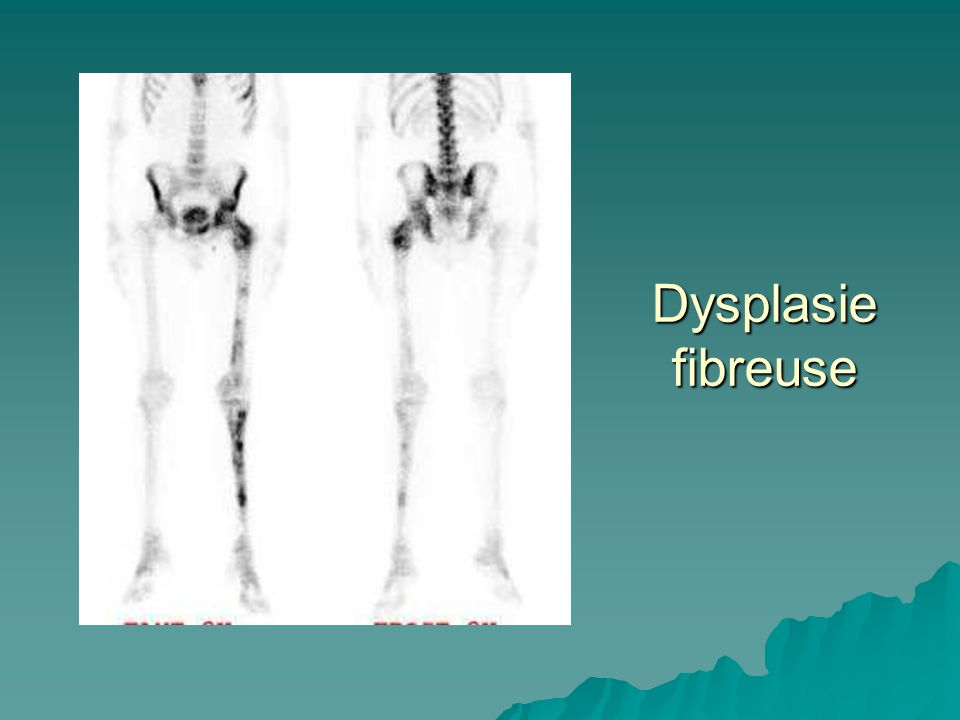 Dysplasie fibreuse