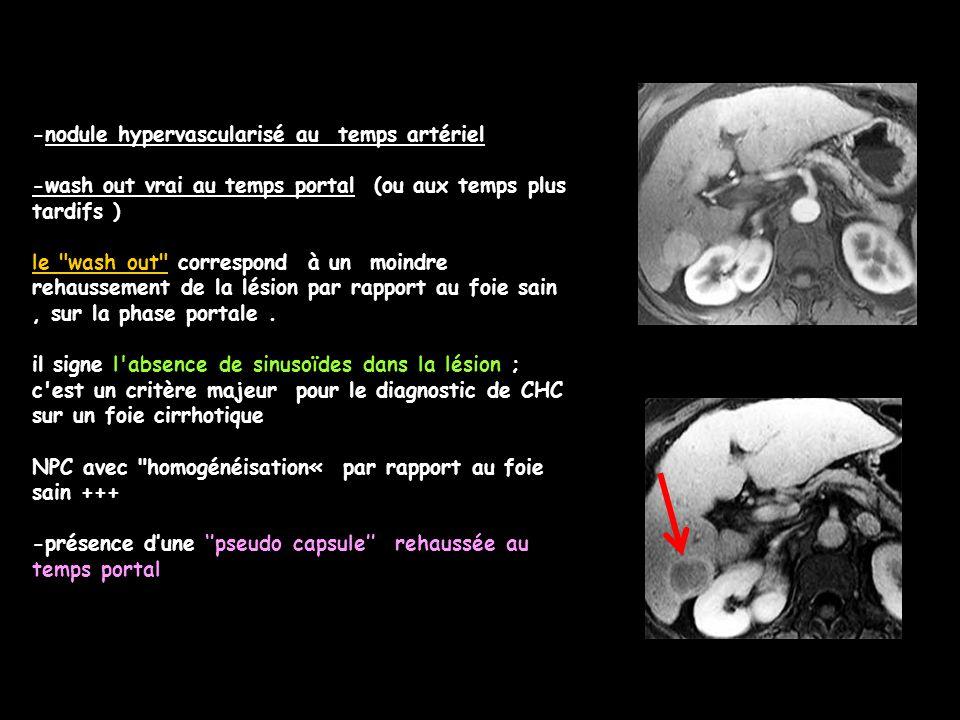 -nodule hypervascularisé au temps artériel
