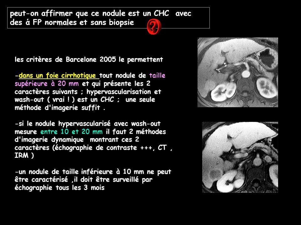 peut-on affirmer que ce nodule est un CHC avec des ά FP normales et sans biopsie