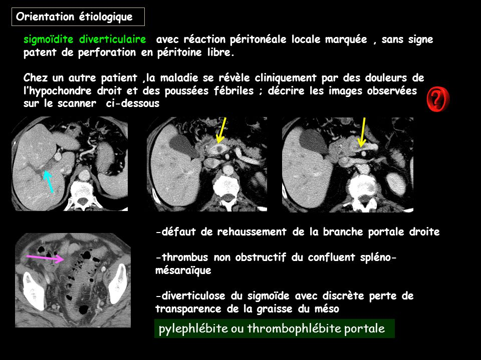 pylephlébite ou thrombophlébite portale