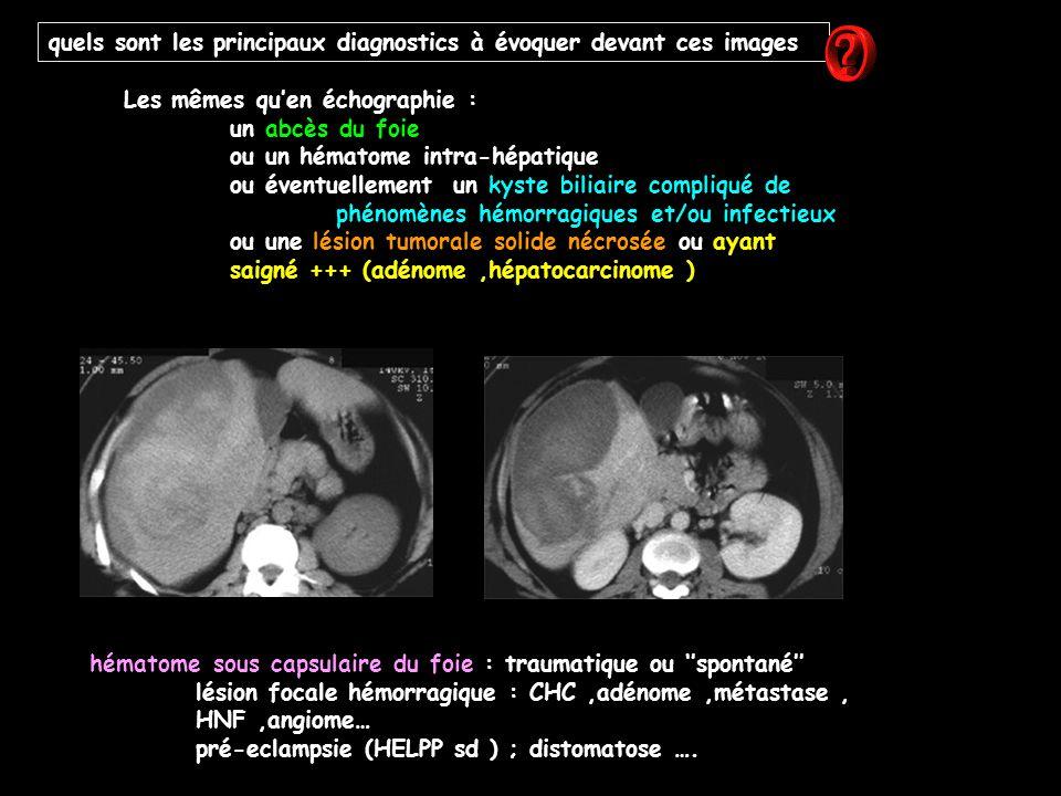 quels sont les principaux diagnostics à évoquer devant ces images