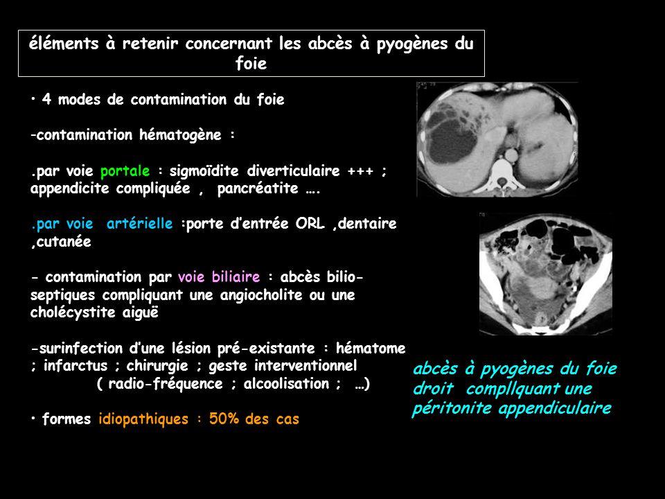 éléments à retenir concernant les abcès à pyogènes du foie