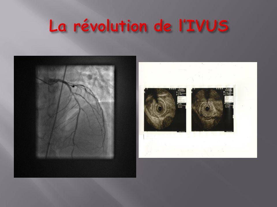 La révolution de l'IVUS