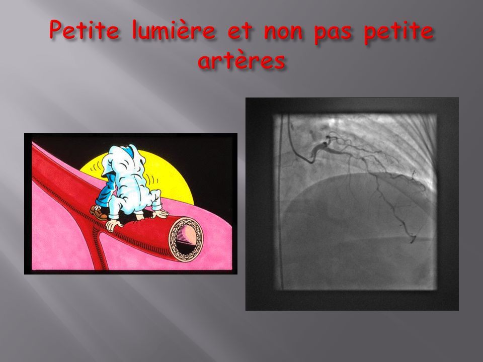 Petite lumière et non pas petite artères