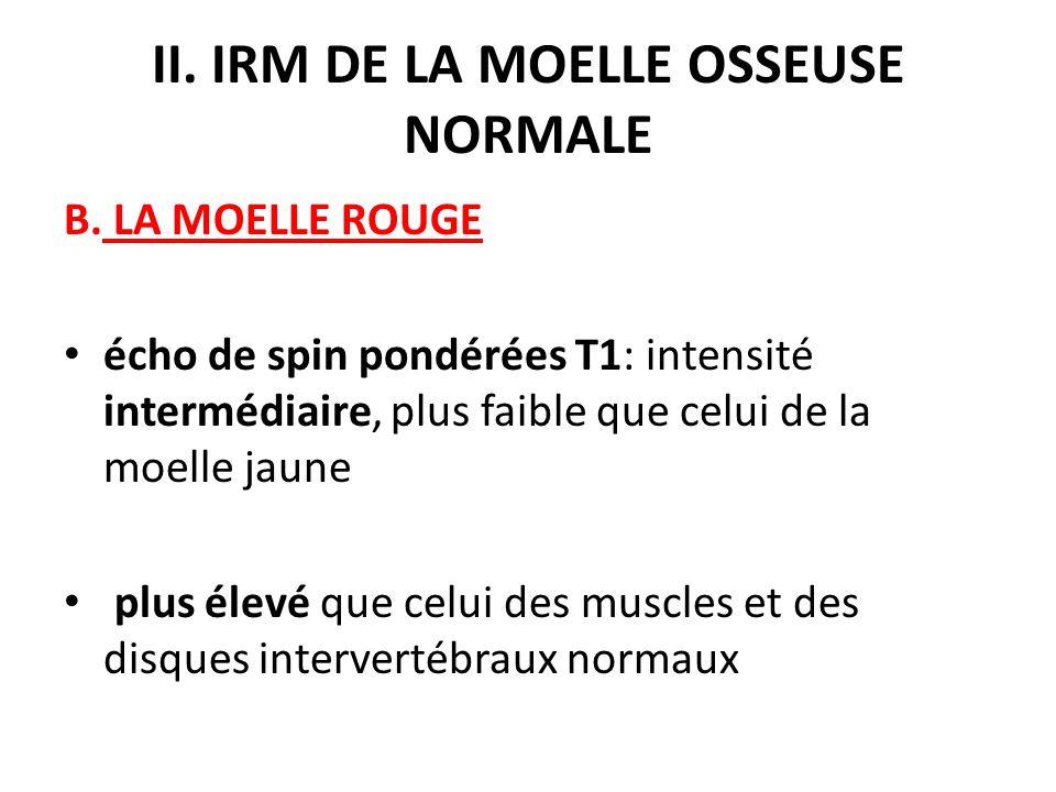 II. IRM DE LA MOELLE OSSEUSE NORMALE