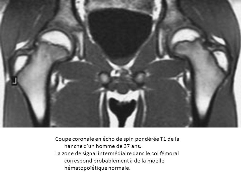 Coupe coronale en écho de spin pondérée T1 de la hanche d'un homme de 37 ans.
