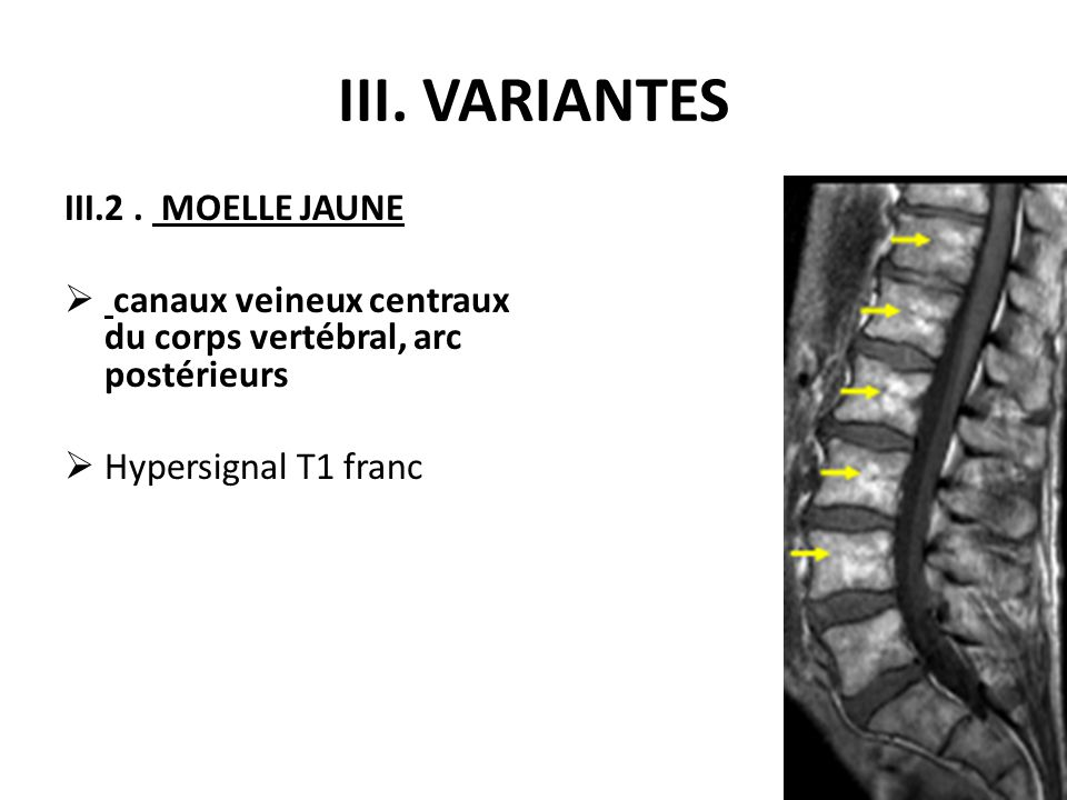 III. VARIANTES III.2 . MOELLE JAUNE