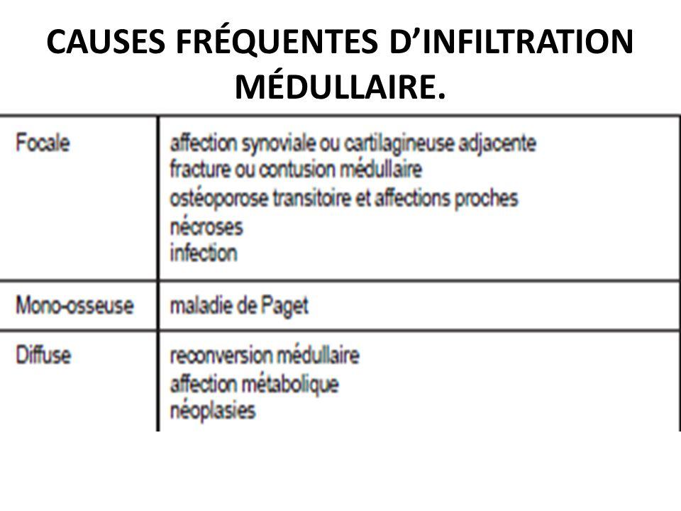 CAUSES FRÉQUENTES D'INFILTRATION MÉDULLAIRE.