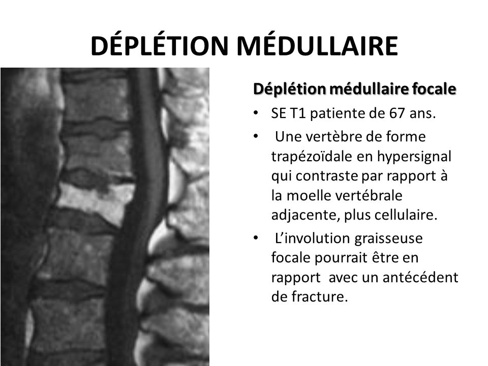 DÉPLÉTION MÉDULLAIRE Déplétion médullaire focale