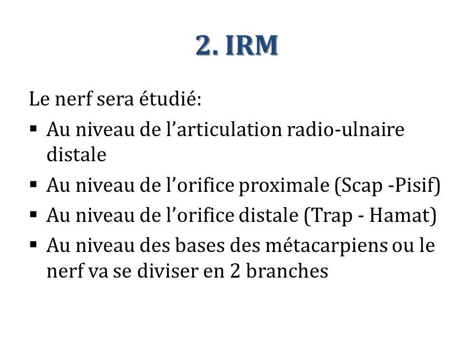 2. IRM Le nerf sera étudié: