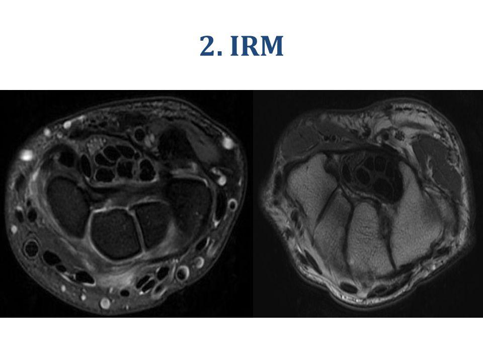 2. IRM IRM du nerf médian (flèche) dans le canal carpien. Séquences axiales pondérées T1 et T2.