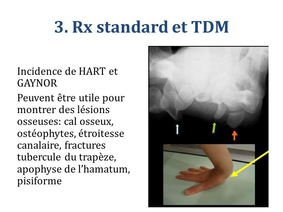 3. Rx standard et TDM