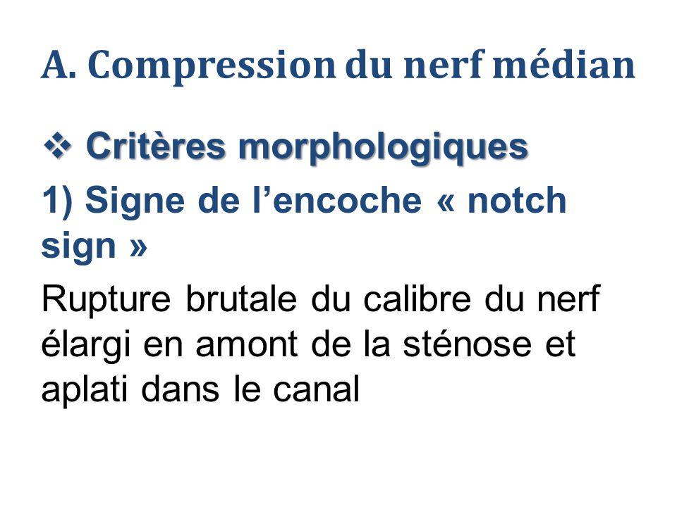 A. Compression du nerf médian