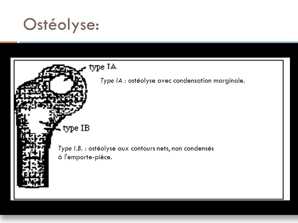 Ostéolyse: Type IA : ostéolyse avec condensation marginale.