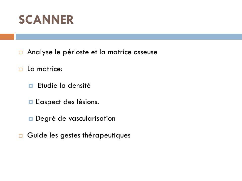SCANNER Analyse le périoste et la matrice osseuse La matrice: