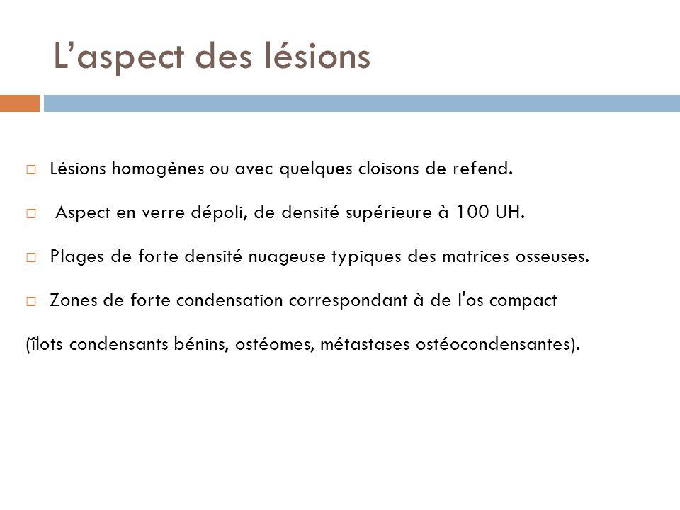 L'aspect des lésions Lésions homogènes ou avec quelques cloisons de refend. Aspect en verre dépoli, de densité supérieure à 100 UH.