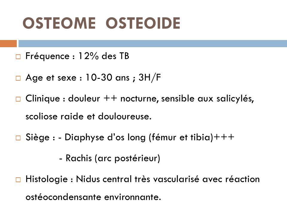 OSTEOME OSTEOIDE Fréquence : 12% des TB Age et sexe : 10-30 ans ; 3H/F