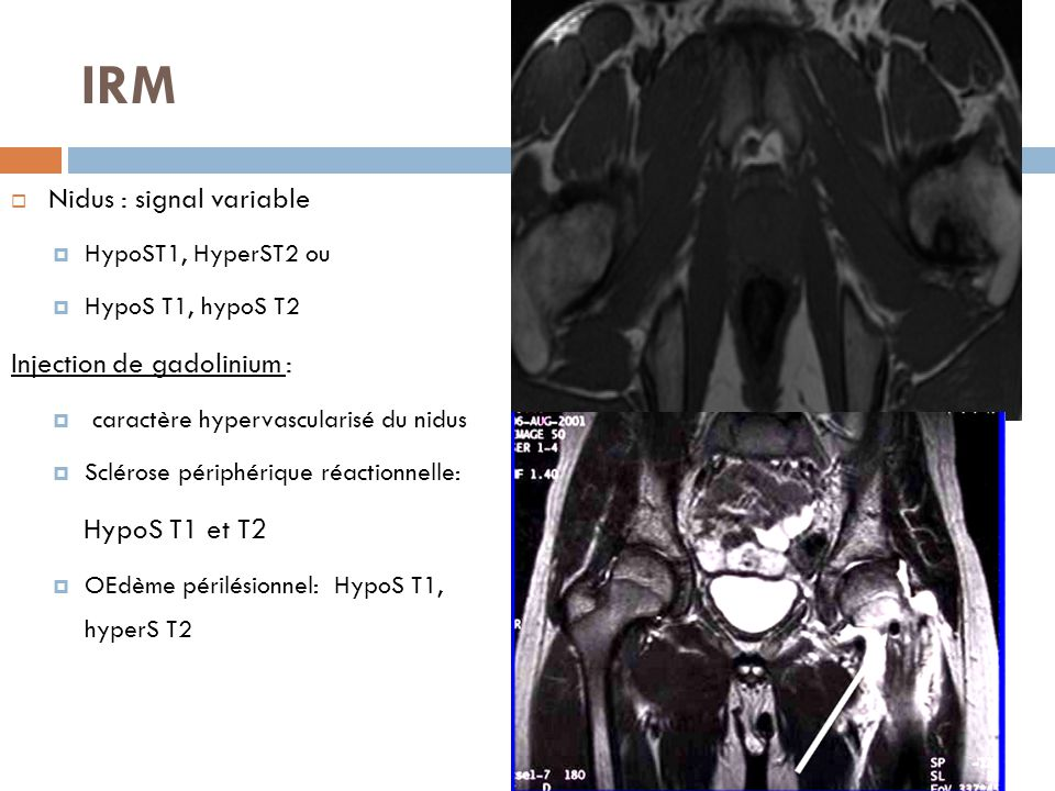 IRM Nidus : signal variable Injection de gadolinium : HypoS T1 et T2