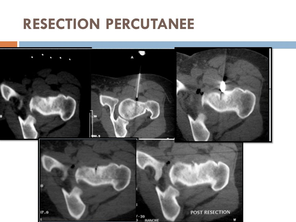 RESECTION PERCUTANEE
