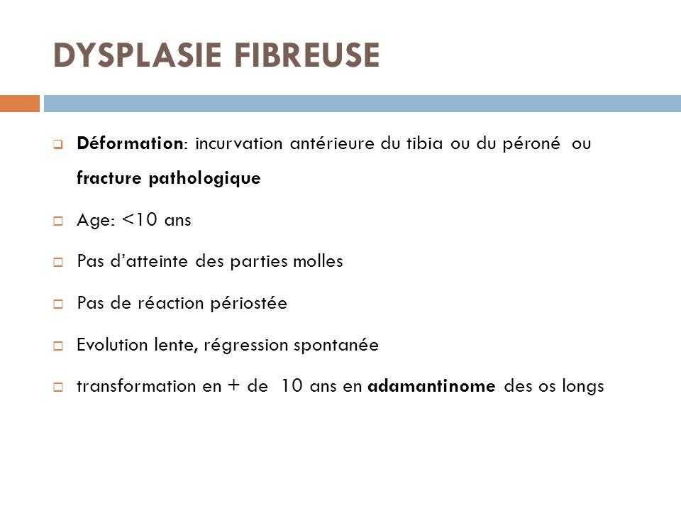 DYSPLASIE FIBREUSE Déformation: incurvation antérieure du tibia ou du péroné ou fracture pathologique.