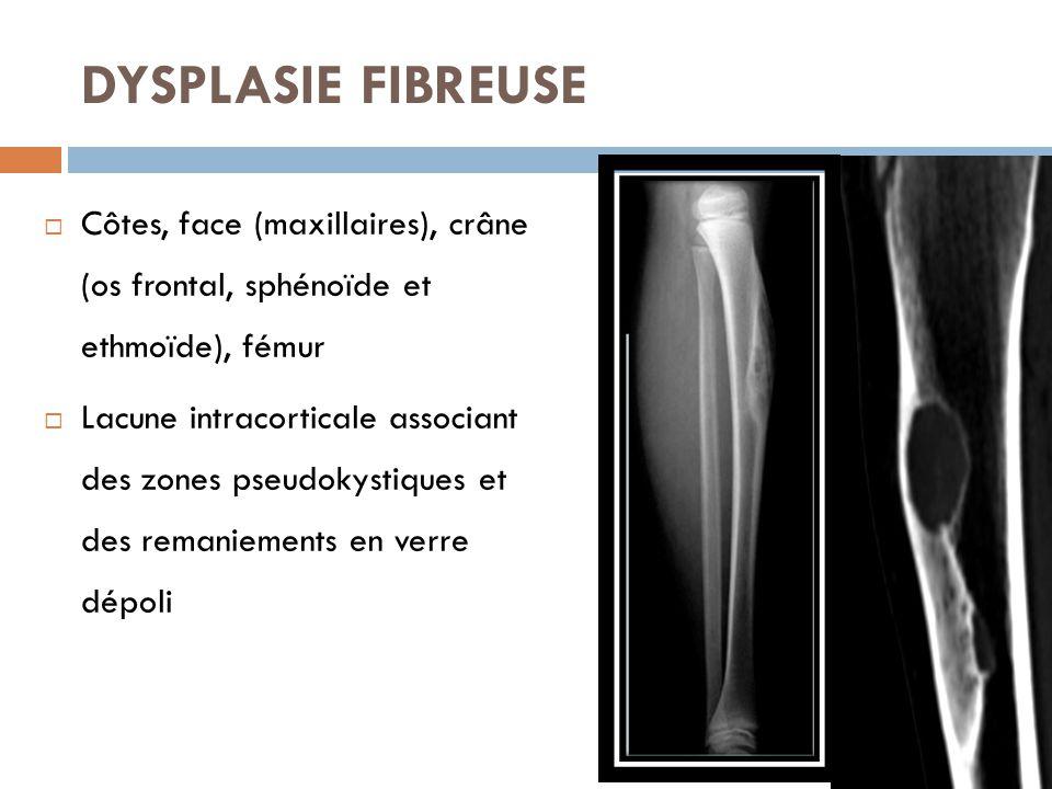 DYSPLASIE FIBREUSE Côtes, face (maxillaires), crâne (os frontal, sphénoïde et ethmoïde), fémur.