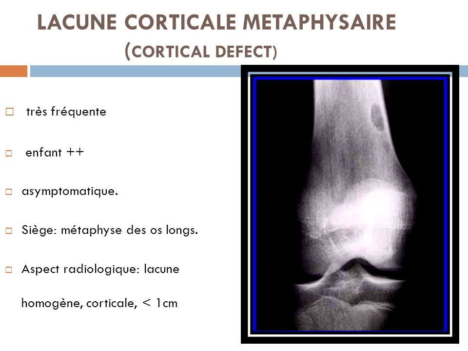 LACUNE CORTICALE METAPHYSAIRE (CORTICAL DEFECT)