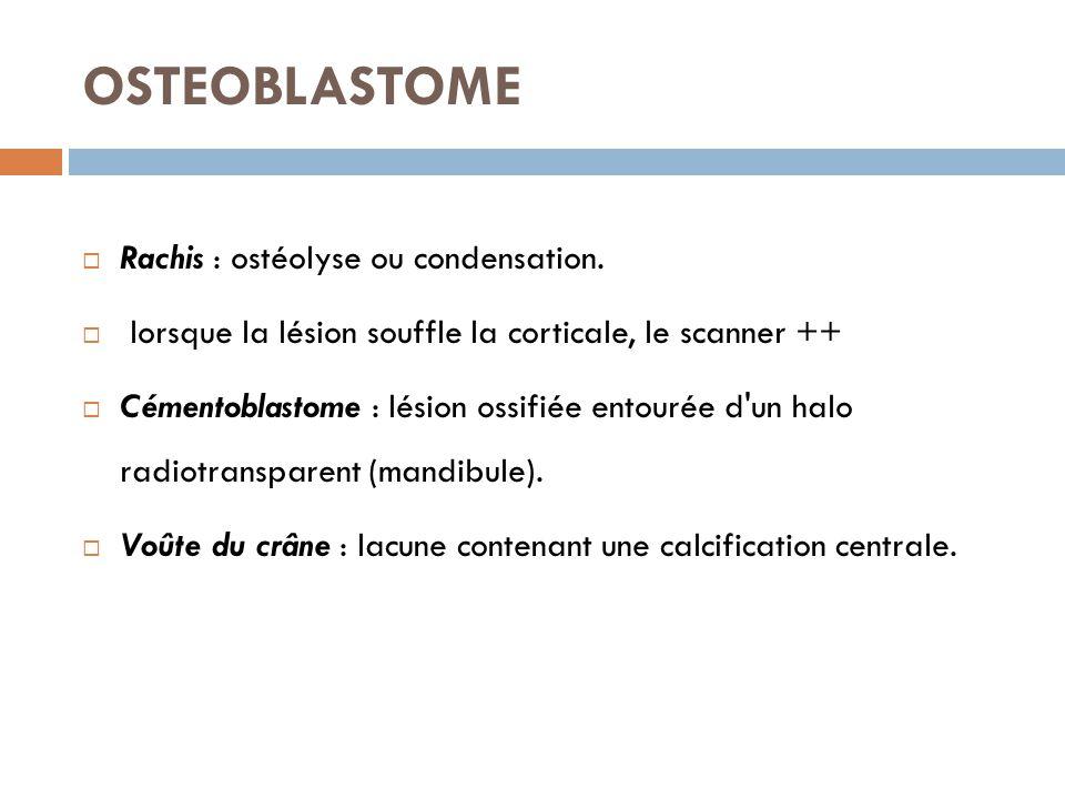 OSTEOBLASTOME Rachis : ostéolyse ou condensation.