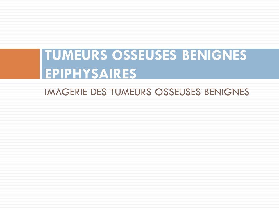 TUMEURS OSSEUSES BENIGNES EPIPHYSAIRES