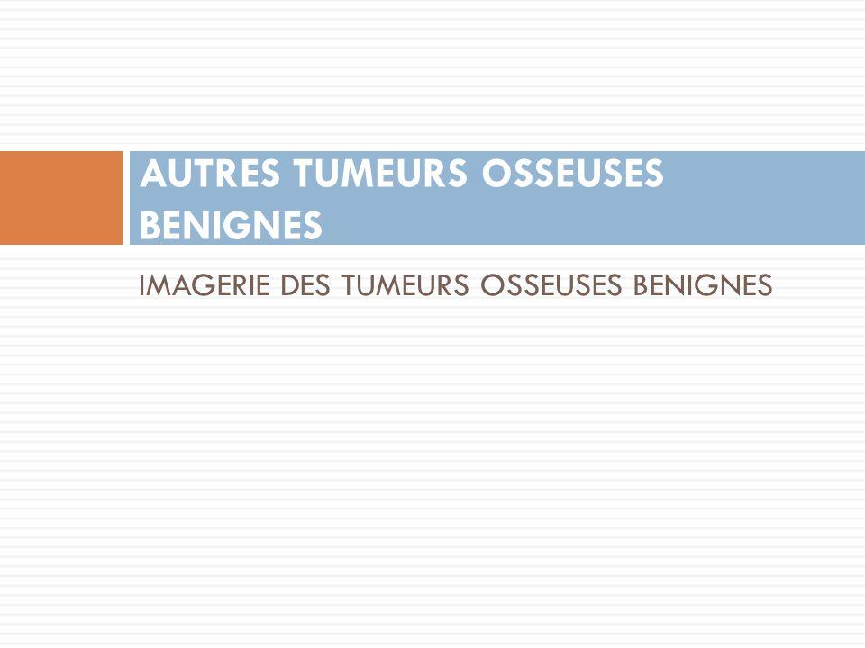 AUTRES TUMEURS OSSEUSES BENIGNES