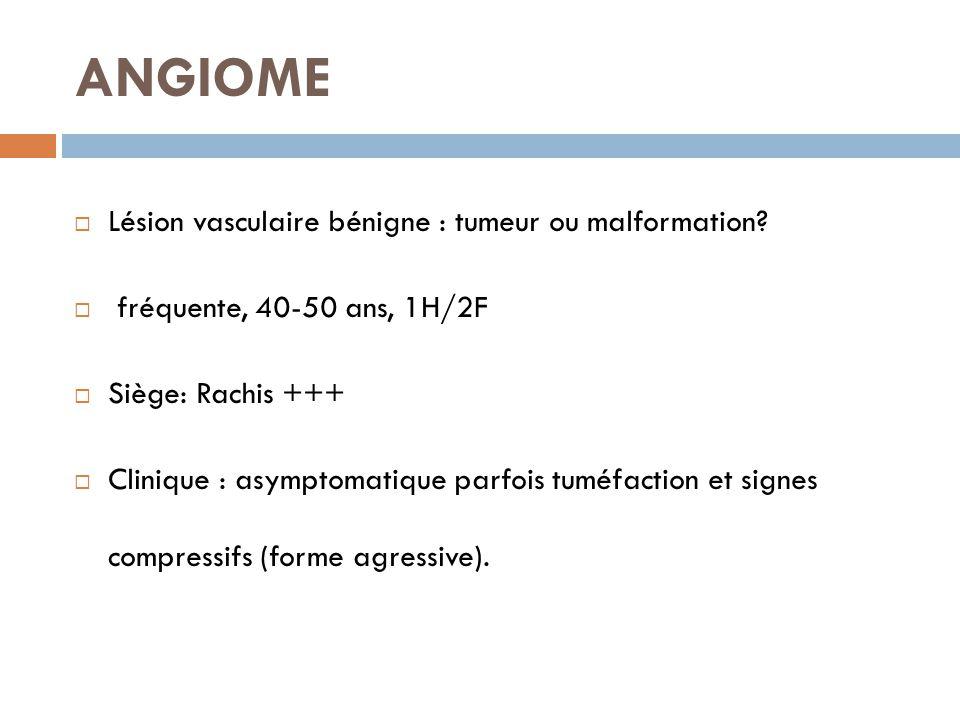 ANGIOME Lésion vasculaire bénigne : tumeur ou malformation