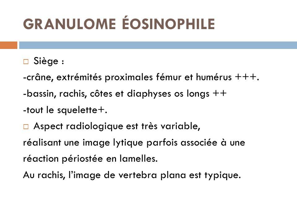 GRANULOME ÉOSINOPHILE