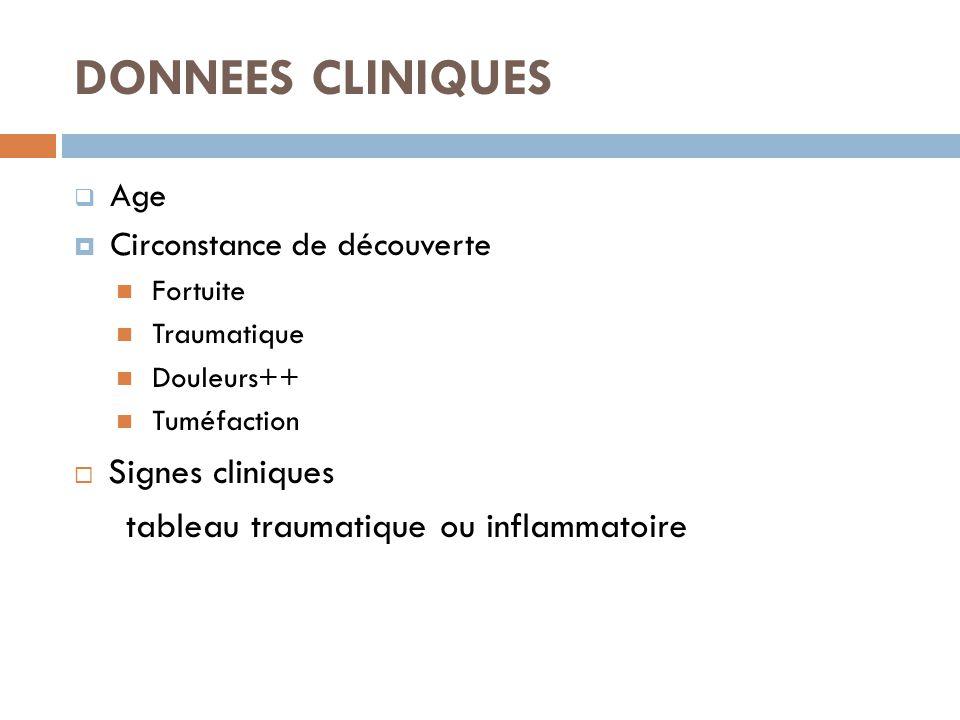 DONNEES CLINIQUES Signes cliniques