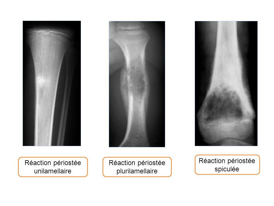Réaction périostée spiculée Réaction périostée unilamellaire