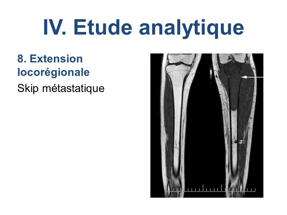 IV. Etude analytique 8. Extension locorégionale Skip métastatique