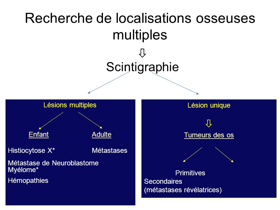 Recherche de localisations osseuses multiples