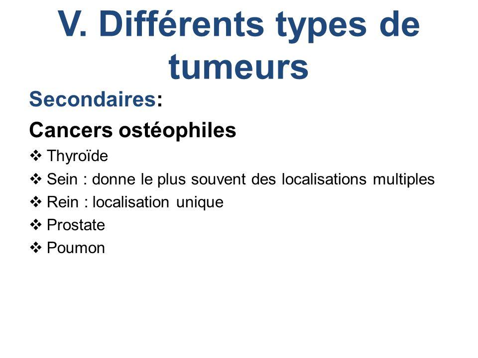 V. Différents types de tumeurs