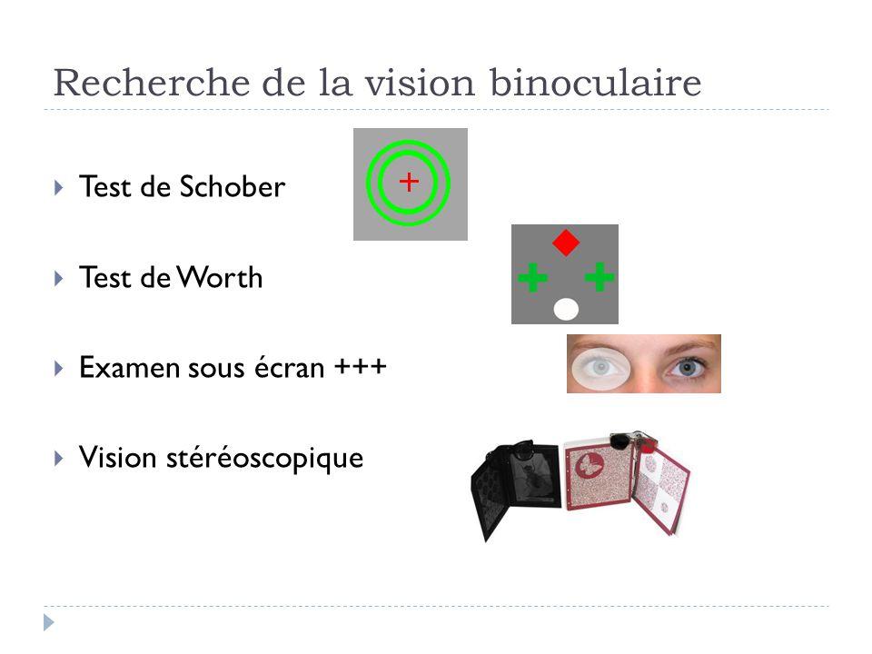 Recherche de la vision binoculaire