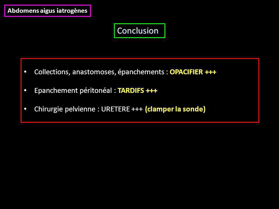 Conclusion Collections, anastomoses, épanchements : OPACIFIER +++