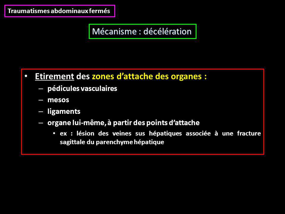 Mécanisme : décélération