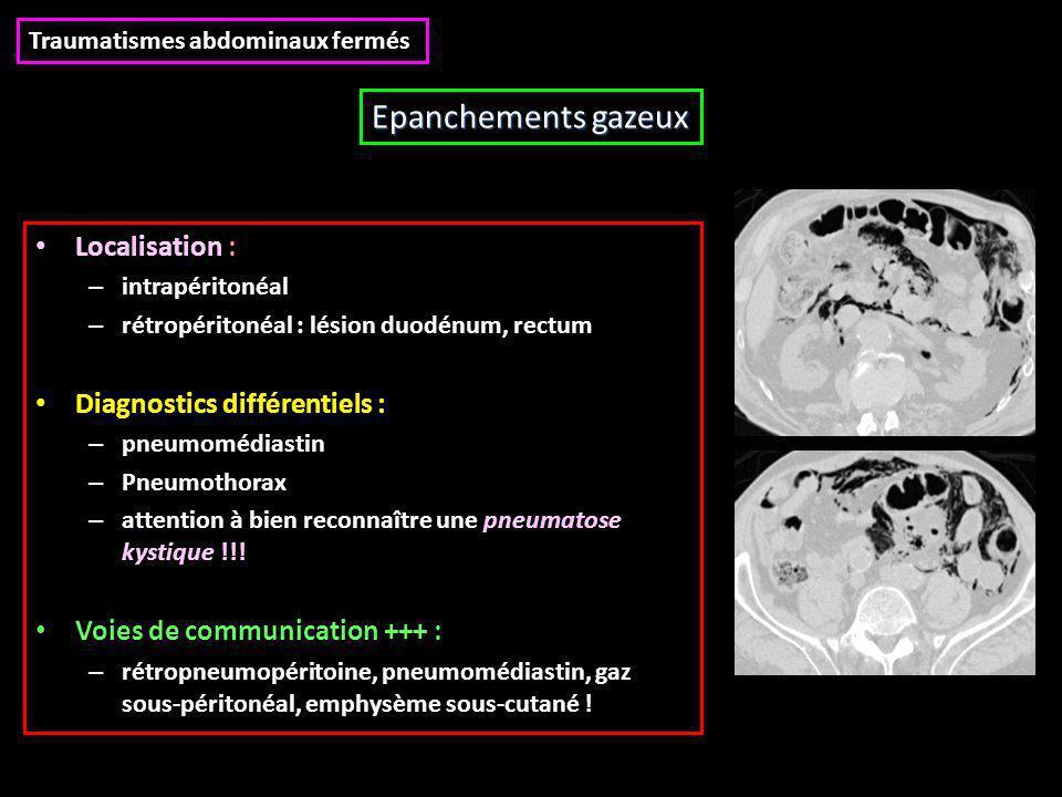 Epanchements gazeux Localisation : Diagnostics différentiels :